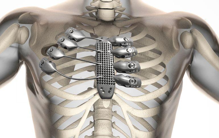 ۳D printed titanium sternum and rib cage_asremavad